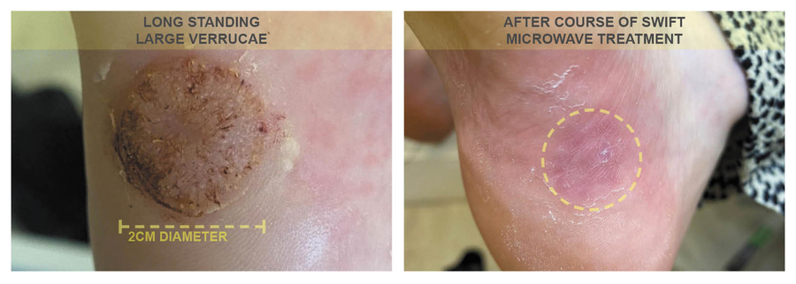 before and after swift treatment of verruca