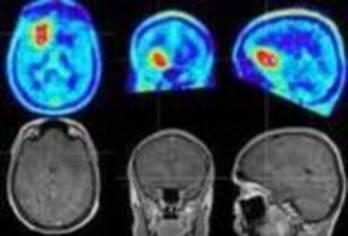 glioma brain tumour
